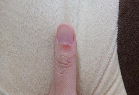私の左親指.jpg