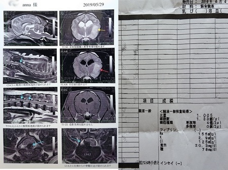 MRIと脳脊髄液の結果.jpg